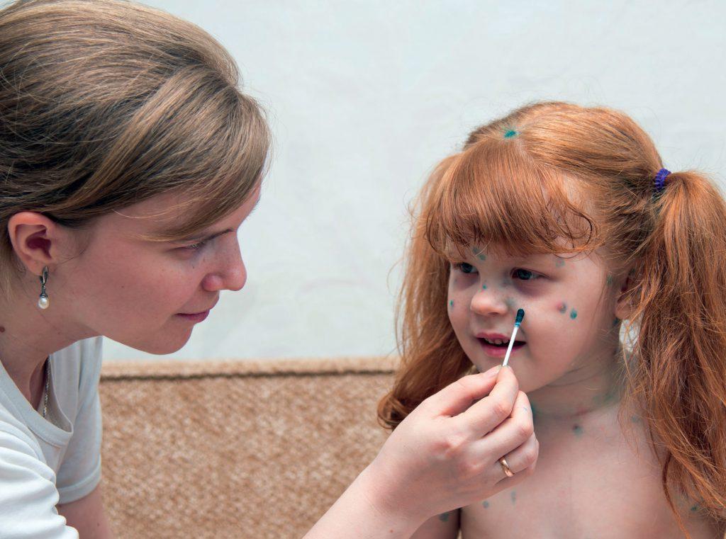 Ospa wietrzna u dzieci fot. Fotolia.com